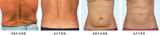 coolsculpting_home_before-after.jpg